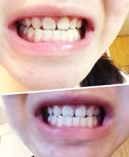 [转载]glo 家用diy冷光牙齿美白仪全系测评-hebe美白牙齿路上的图片